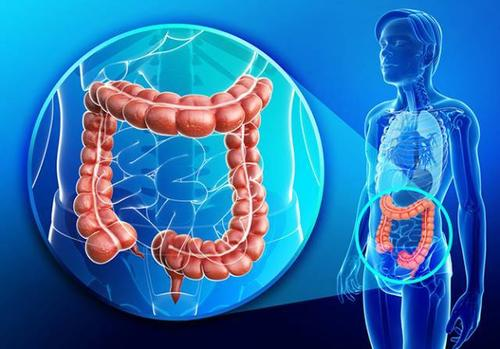 Breath test helps identify colorectal cancer